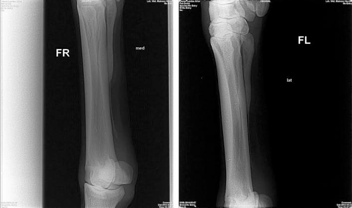 Laseroterapia wysokoenergetyczna złamanie kości u konia