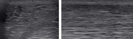 Obraz USG przed pierwszym zabiegiem laseroterapii wysokoenergetycznej