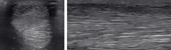 Obraz USG uszkodzenia ścięgna mięśnia zginacza palca powierzchownego przed podjęciem leczenia