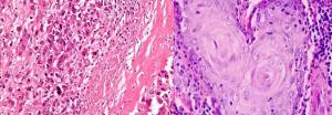 Rak płaskonabłonkowy akantolityczny